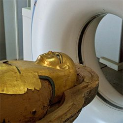 A team of UCSD researchers carefully examined 22 mummies from the Museum of E...