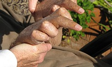 A picture of Condon and his caregiver's hands.