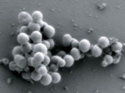 Craig Venter and his team planted a synthetic M. mycoides genome into these yeast cells.