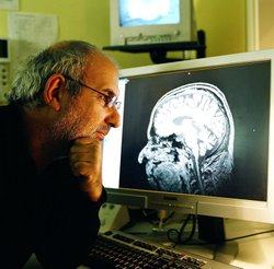 Alan Yentob and his brain scan
