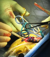 Surgeons get ready to close McFadden's incision and replace piece of skull.