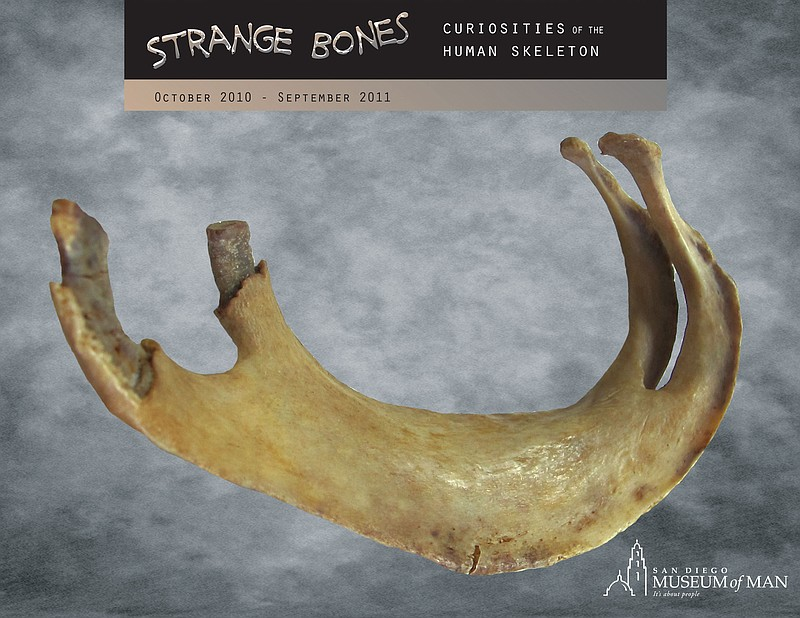 This specimen displays a fusion between the 2nd and 3rd ribs, a congenital ab...