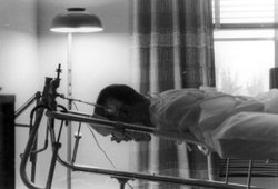 Fred Fay recovers from his injury at the National Institutes of Health in 1961.
