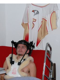Mallon suffered a concussion and a broken neck. He's made a full recovery, but can no longer play competitive sports.
