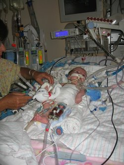 Karly Nuttal was born with an enlarged heart in 2007. Surgeons hooked her up ...