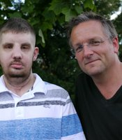 Mitch Hunter who had a face transplant in April 2011 with presenter Michael Mosley.