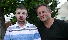 Mitch Hunter who had a face transplant in April... (23746)