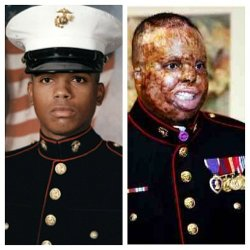 Sgt. Merlin German before and after his injury.