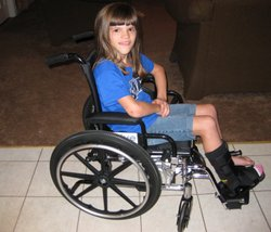 Ashlyn Blocker has congenital insensitivity to pain. She has been unable to feel pain since birth. She is shown with a fractured ankle after falling off her bike.