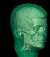 Forensic pathologist and neuropathologist Dr. Peter Cummings led a team from Boston University in creating an experimental 3D virtual reconstruction of JFK's skull for NOVA for the first time ever to help determine the entry point of the gunshot wound to President Kennedy's head.