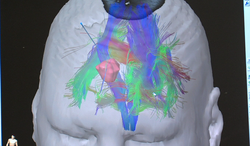 A 3D image, produced by a method called tractography, displays the neural connections in Carpinelli's brain, and shows where her tumor is located. The blue line is the path that Dr. Chen will use to destroy the tumor.