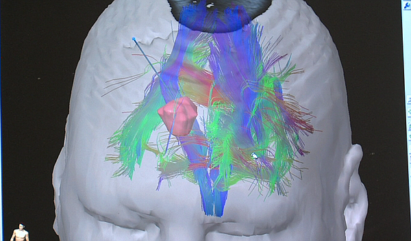 A 3D image, produced by a method called tractography, displays the neural con...