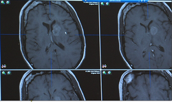 A standard MRI of Carpinelli's brain shows just the barest outlines of her tu...
