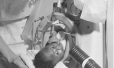 Infant with polio in iron lung respirator, 1952. (65445)