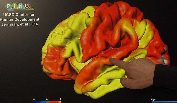 John Iversen points to the part of the brain cortex that ...