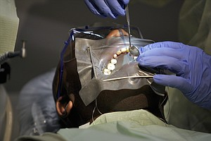 Full Dental Benefits Restored For Adults On Medi-Cal