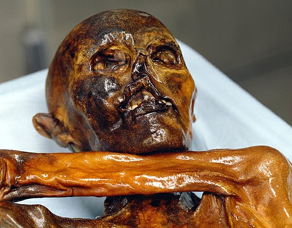 Frontal shot of Otzi's face.