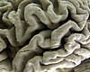 Number Of Americans With Alzheimer's Expected To More Tha...