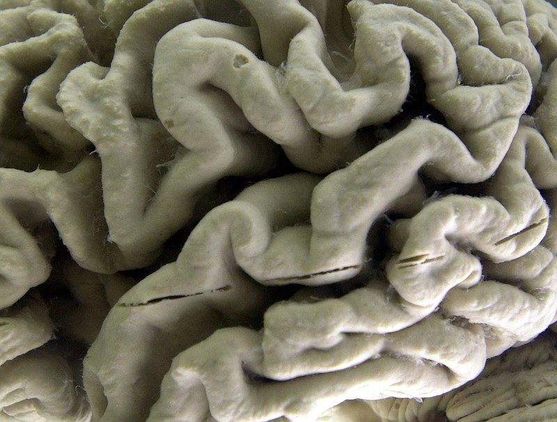 A section of a human brain with Alzheimer's disease is on display at the Muse...