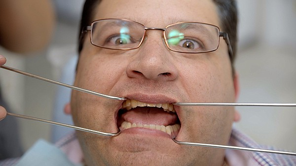 Host Jorge Meraz gets his teeth worked on at a dentist in...