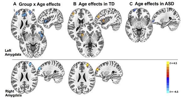 Brain scans show strong connectivity, marked in orange, b...