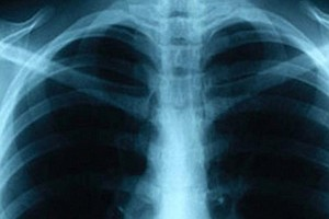 County Health Reports 2 TB Cases; Advises Testing For Tho...