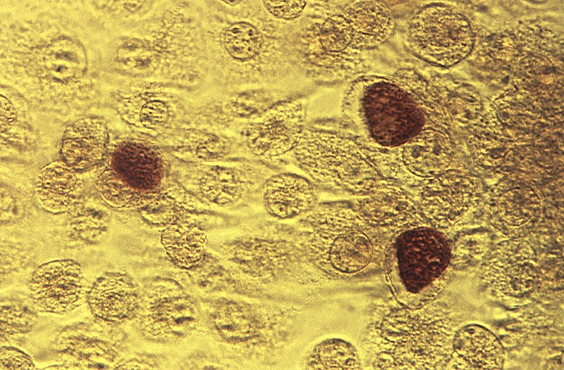 This 1975 file microscope image made available by the Centers for Disease Con...