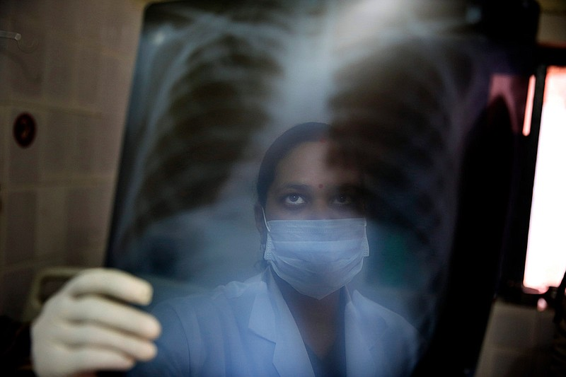 An Indian nurse looks at x-ray results of patient Shyam Lal suspected to have...