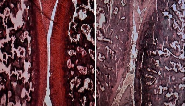 On the left is a cross-section of a knee from a rat with ...