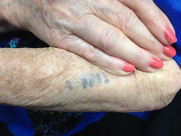 Eva Kor shows the tattoo the Nazis put on her arm, A-7063.