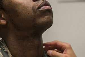 Photo for A Skin Condition Makes It Hard For Some Black Men To Shave And Get Ahead In T...
