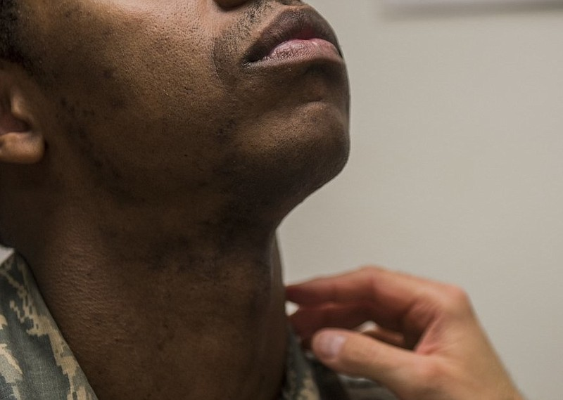 Staff Sgt. Antoine raises his head as a flight surgeon inspects his neck and ...