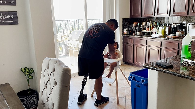 Marcus Chischilly in his home in San Diego. Calif. He lost his left leg to an...