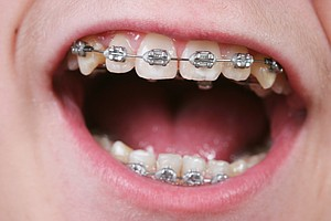 15-Year-Old Who Wants Braces Asks: Will Obamacare Cover Them?