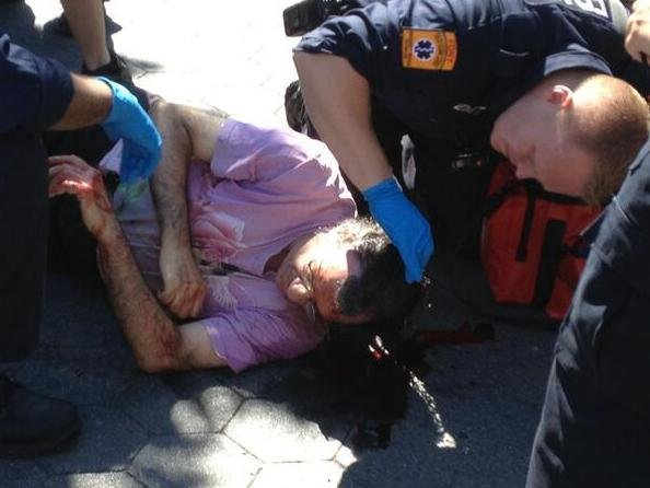 Jeffrey Babbitt lay on the ground as paramedics treat him following his assault.