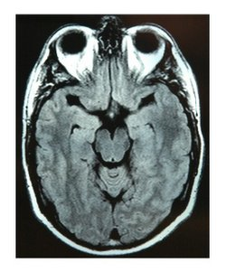 MRI of brain injury
